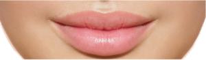 Vip's Lips - controindicazioni - effetti collaterali