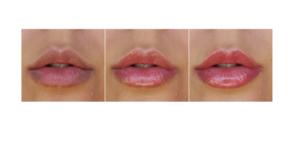 Vip's Lips - ingredienti - come si usa - funziona - composizione