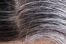 Anti-Grey Treatment - effetti collaterali - controindicazioni